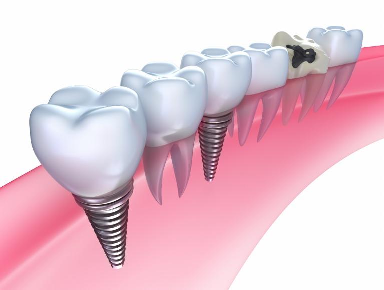抜けてしまった歯の代わりに「第二の永久歯」を入れてみませんか