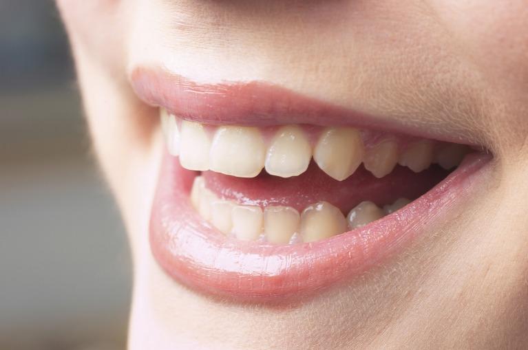 歯をきれいにすることで、気持ちまで明るくなれる